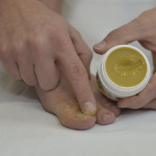 Se la crema ekzoderit aiuta a un fungo di unghie
